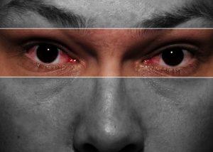 Marijuana Eyes